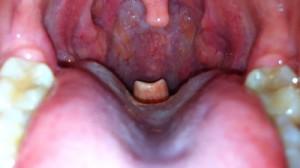 Epiglottis-at-the-back-of-the-tongue-photo